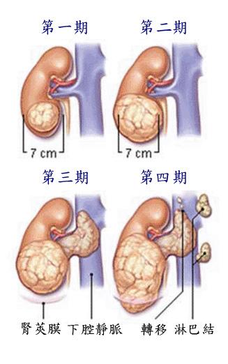 腎細胞癌分期